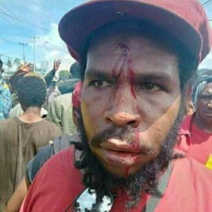 Indonesian Fascist Military and Terrorist Police Torturing Papuan Students in Nabire